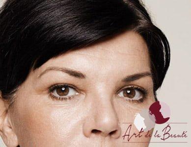 Botox behandeling voorhoofdrimpels - na