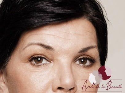 Botox behandeling voorhoofdrimpels - voor