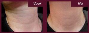 halslijnen botox voor en na