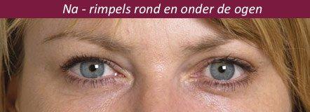 rimpels ogen verminderen