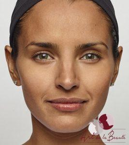 Foto van na de behandeling met botox van de fronsrimpels