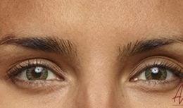 Foto van na de behandeling met botox van de fronsrimpels (close-up)
