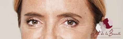 Foto van na de behandeling met botox van de kraaienpootjes (close-up)