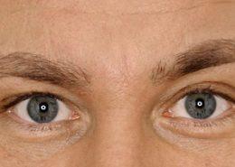 Foto van na de behandeling met botox van fronsrimpel man close-up
