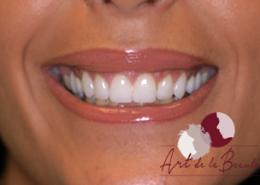 Foto van na de behandeling met botox van gummy smile