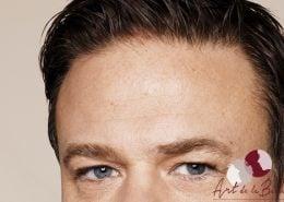 Na - behandeling met botox van voorhoofdrimpels man close up