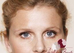Foto van na de behandeling met botox van voorhoofdrimpels vrouw close-up