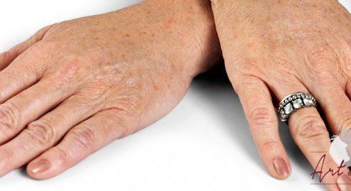 Foto van na de behandeling met fillers van de handen