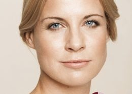 Na - behandeling met fillers van wallen (ogen), voorhoofd, afhangende mondhoeken en lipcontour
