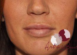 Foto van na de behandeling met fillers voor meer volume van de lippen (close up)