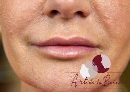 Foto van na de behandeling met fillers voor meer volume van de lippen en correctie van de vorm close up