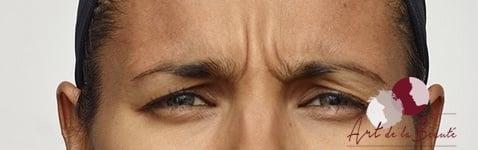 Foto van voor de behandeling met botox van de fronsrimpels (close-up)