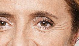 Foto van voor de behandeling met botox van de kraaienpootjes (close-up)