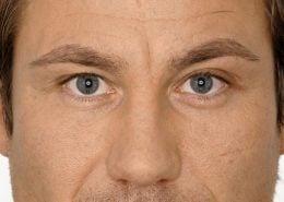 Foto van voor de behandeling met botox van fronsrimpel man