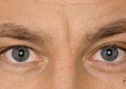Foto van voor de behandeling met botox van fronsrimpel man close-up