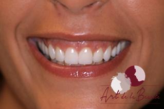 Foto van voor de behandeling met botox van gummy smile