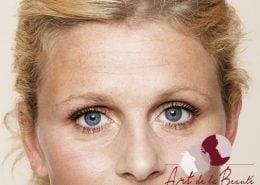 Foto van voor de behandeling met botox van voorhoofdrimpels vrouw close-up