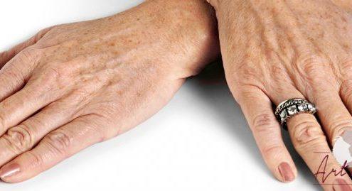 Foto van voor de behandeling met fillers van de handen