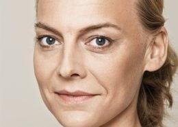 Voor - behandeling met fillers van de wangen, wallen (ogen), lipcontour, voorhoofd en afhangende mondhoeken
