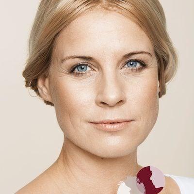 Voor - behandeling met fillers van wallen (ogen), voorhoofd, afhangende mondhoeken en lipcontour