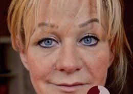 Foto van voor de behandeling met fillers voor meer volume van de lippen en correctie van de vorm