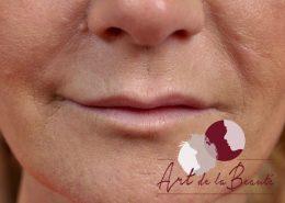 Foto van voor de behandeling met fillers voor meer volume van de lippen en correctie van de vorm close up