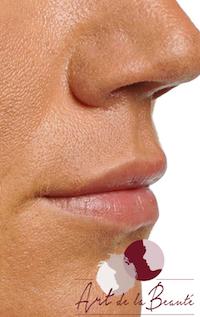 Foto van na de behandeling van de lip contouren en subtiel volume