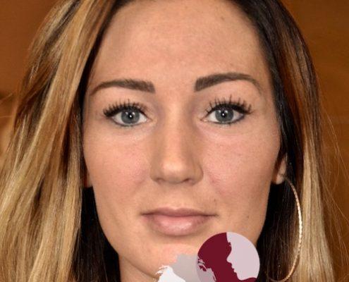 Foto van voor de behandeling met fillers voor meer volume van de lippen
