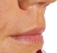 Voor foto van de behandeling van de lip contouren en subtiel volume