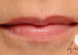 Na - behandeling van de lijntjes van de boven- en onderlip (rokerslijntjes)