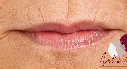 Voor - behandeling van de lijntjes van de boven- en onderlip (rokerslijntjes)