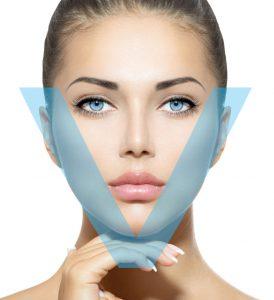 V-shape botox