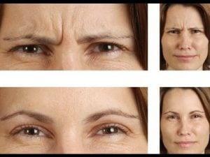 botox behandeling fronsrimpels