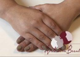 Filler behandeling van de handen met Radiesse - na