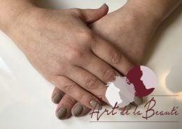 Filler behandeling van de handen met Radiesse - voor