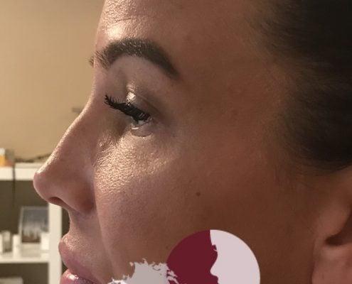 Neuscorrectie met fillers Neauvia - voor