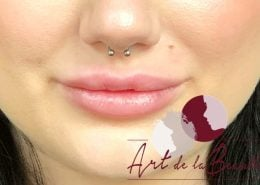 Volume behandeling lippen met fillers Stylage close - na