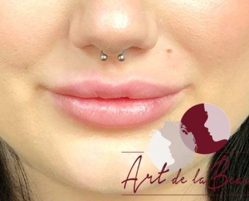 Volume behandeling lippen met fillers Stylage close - na