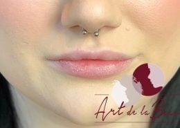 Volume behandeling lippen met fillers Stylage close - voor