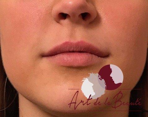 Volume behandeling van de lippen met Etermis - na