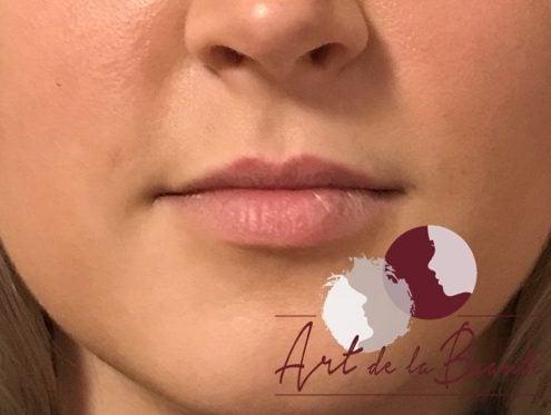 Volume behandeling van de lippen met Etermis - voor