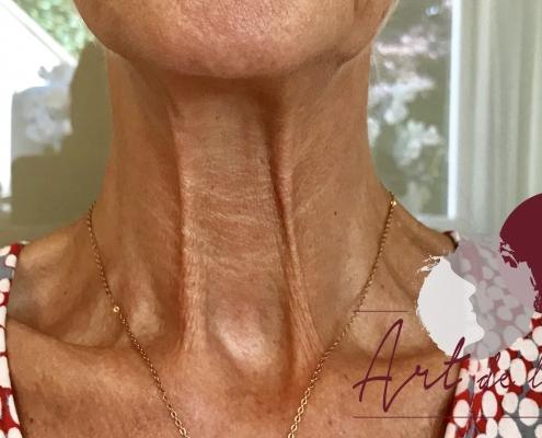 Halslijnen en nekrimpels botox behandeling - na