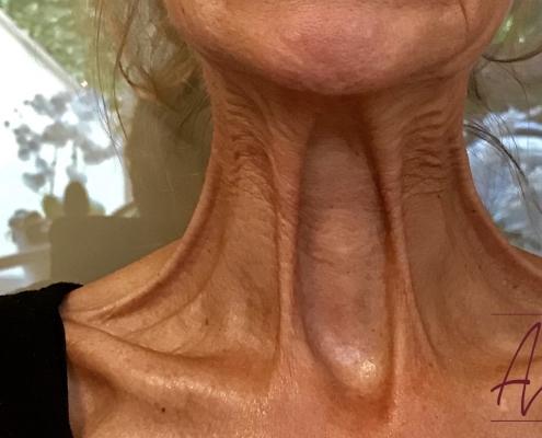 Halslijnen en nekrimpels botox behandeling - voor
