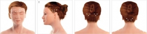 botox migraine spanningshoofdpijn injectie plaatsen