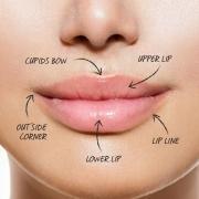 russian method lip fillers