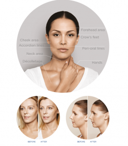 restylane skinbooster areas