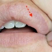 witte bultjes op de lip