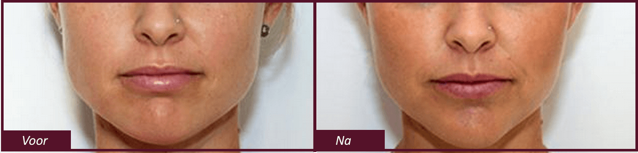 Voor en na foto's faceslimming behandeling
